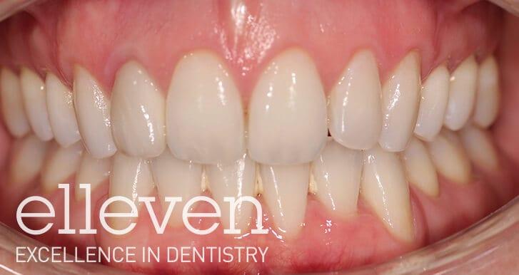 Discoloured Front Tooth - Elleven Dental