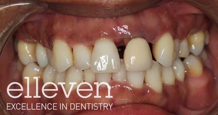 Drifted Teeth due to Gum Disease - Elleven Dental