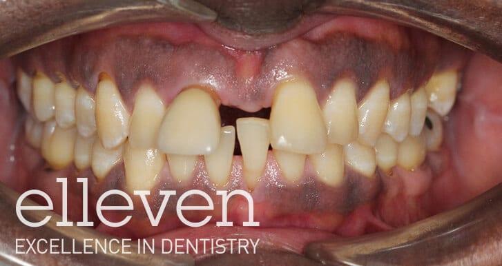 Large Front Gap - Elleven Dental