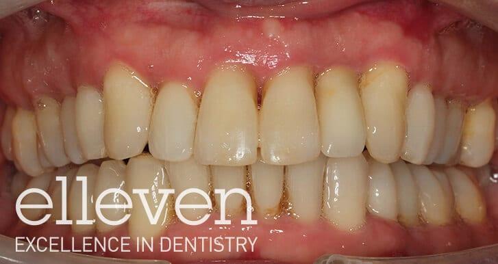 Missing Anterior Tooth - Elleven Dental