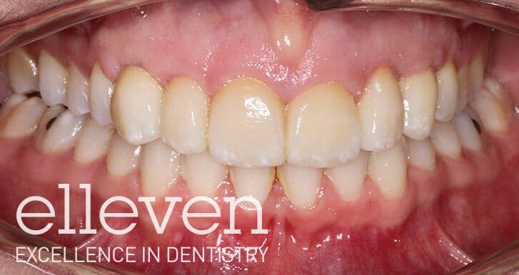 Retained Baby Teeth - Elleven Dental