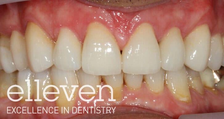 Uneven Shape of Teeth - Elleven Dental