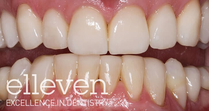 Worn and Stained Teeth  - Elleven Dental