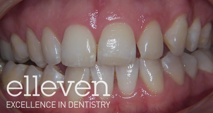 Centreline Shift - Elleven Dental