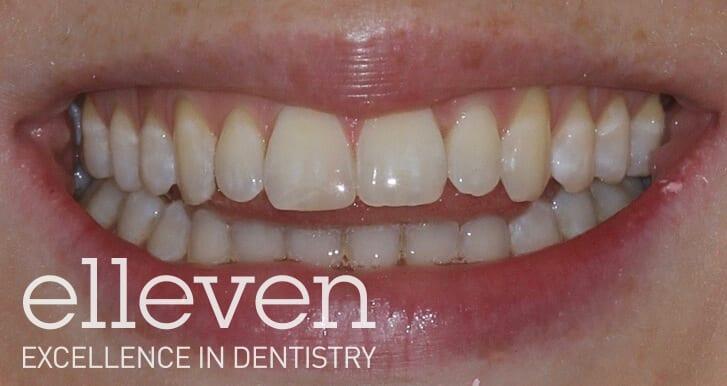 Crowding - Elleven Dental