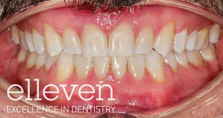 Generalised Spacing - Elleven Dental