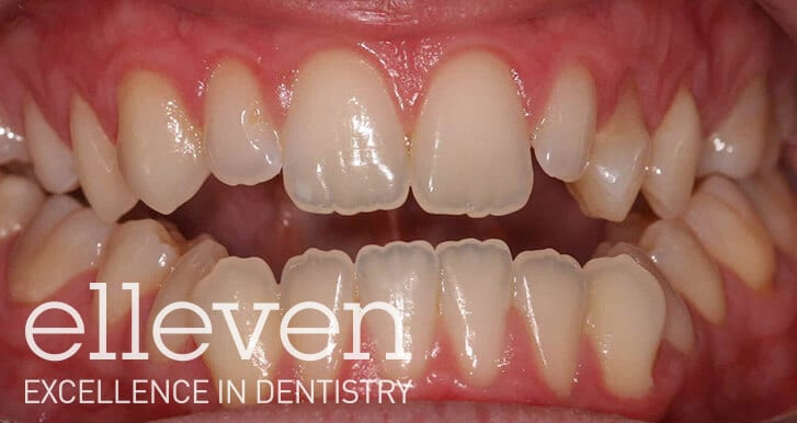 Jaw Surgery - Elleven Dental