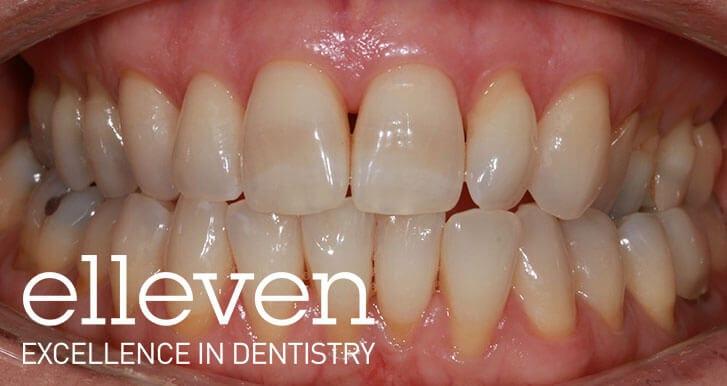 Narrow Smile - Elleven Dental