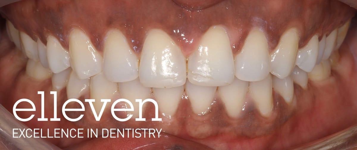 Spaced Anterior Teeth - Elleven Dental