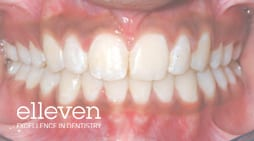 Increased Overjet - Elleven Dental