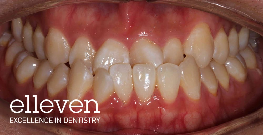 Large Lower Jaw - Elleven Dental