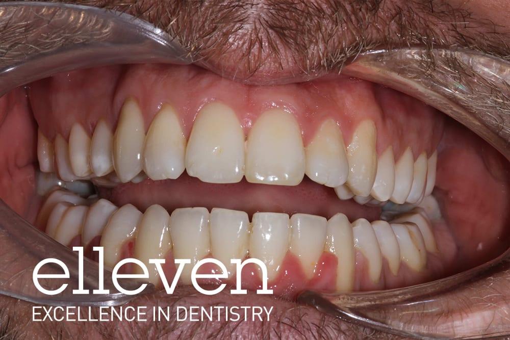 Misalignment - Elleven Dental