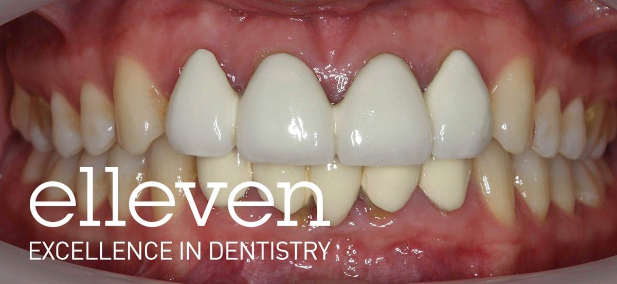 Poor Previous Dentistry - Elleven Dental