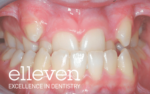 Posterior Crossbite - Elleven Dental