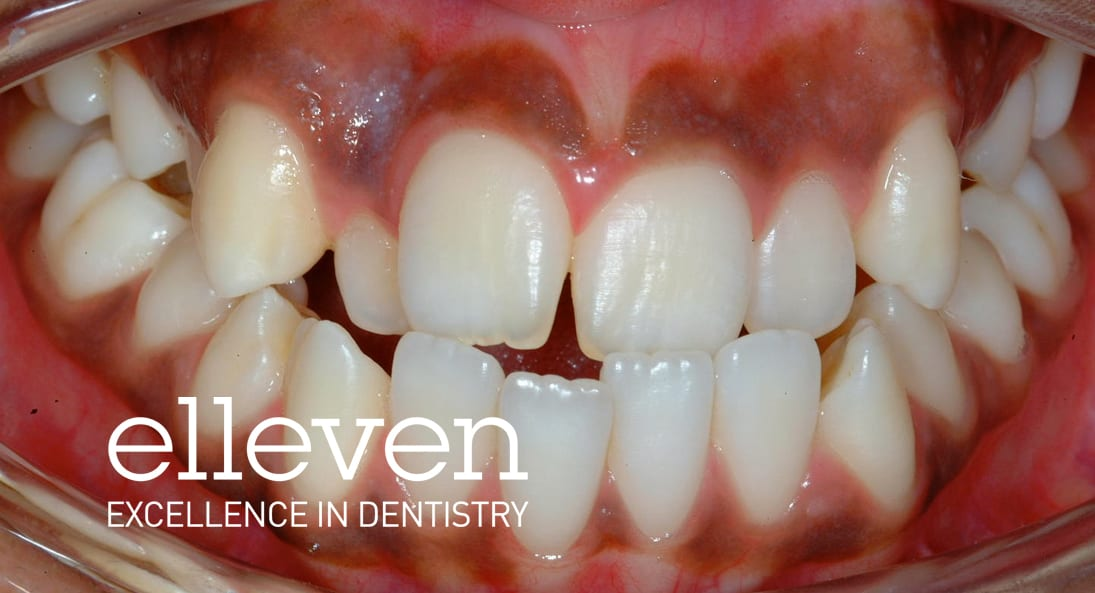 Reverse Bite - Elleven Dental