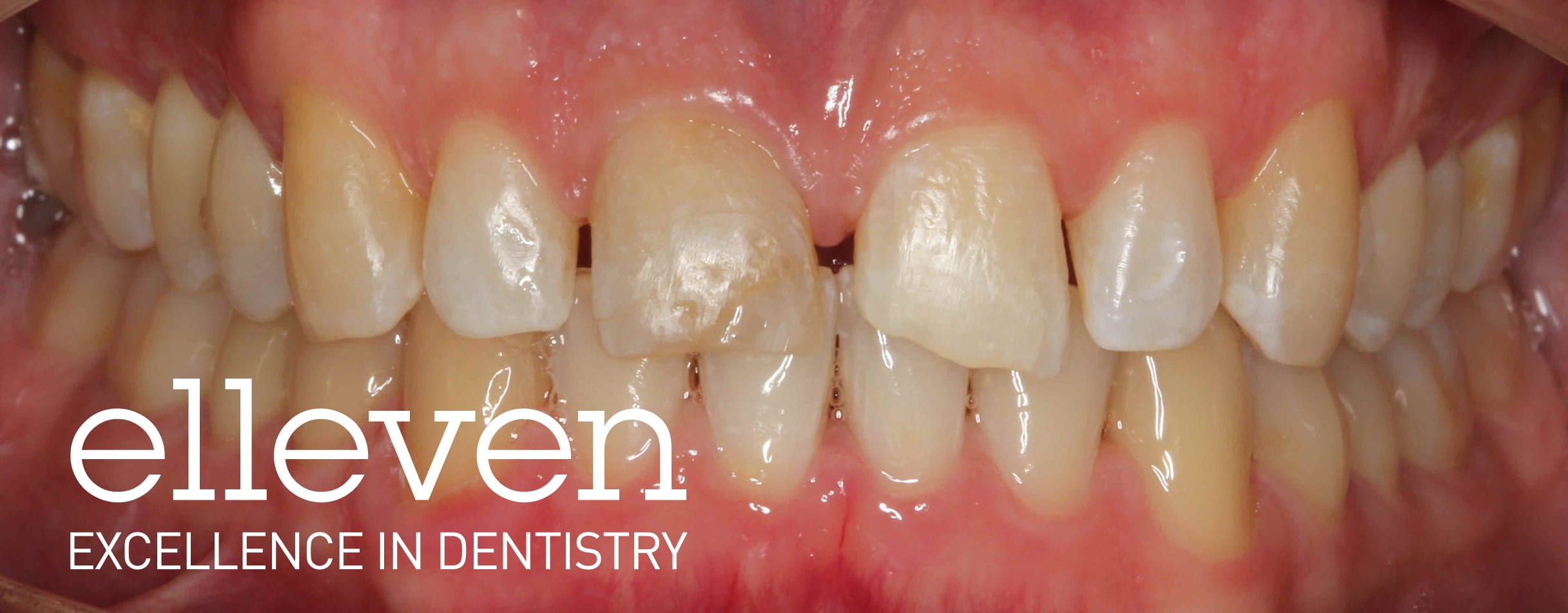 Trauma to the Front Tooth - Elleven Dental