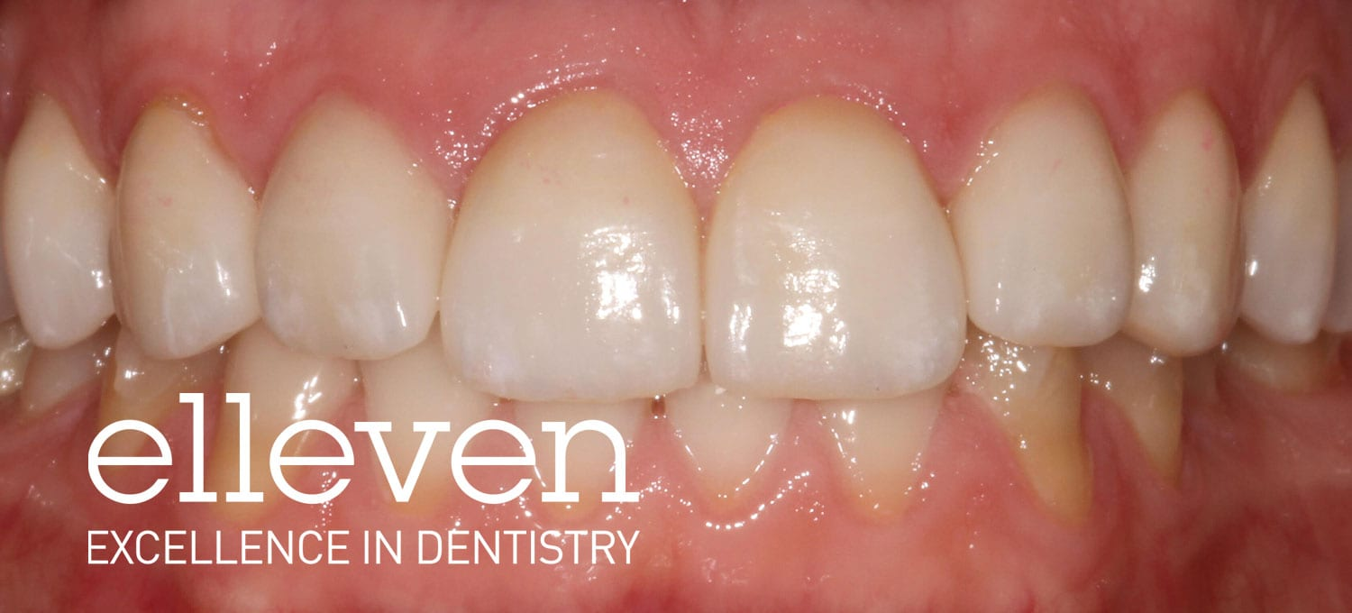 Tooth Wear from Grinding - Elleven Dental