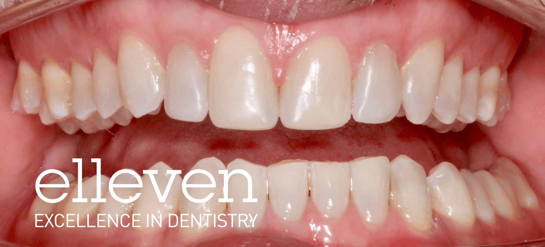 Small Spaced Teeth - Elleven Dental