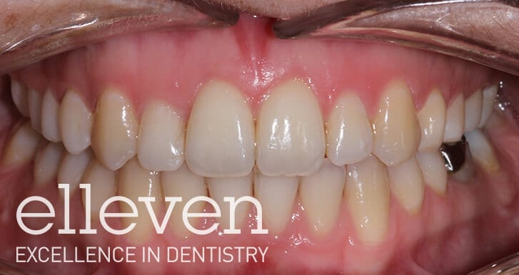 Open Bite - Elleven Dental