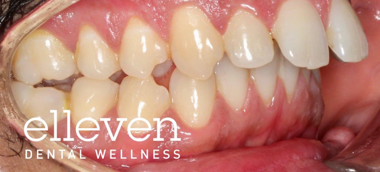 Jaw Surgery - Elleven Dental